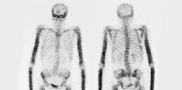 Nuclear Medicine  Gammagraphy - ASSSA English