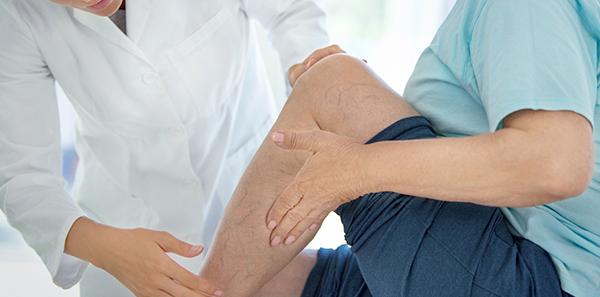 Consejos para prevenir la enfermedad venosa crónica y proteger las venas