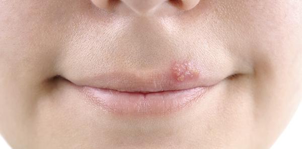 infección de la piel por herpes simple